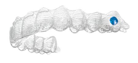 Invisalign - Gerade Zähne mit der unsichtbaren